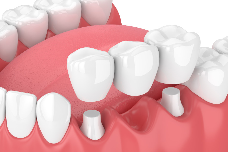 Model showing a three tooth dental bridge