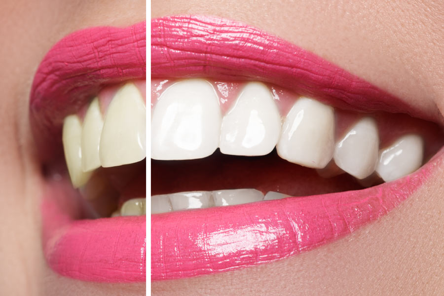 Close up of a smile with bright pink lipstick showing before and after professional teeth whitening